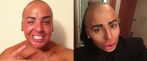 Jordan James Plastic Surgery Before and After Photos