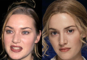 Kate Winslet Plastic Surgery Before and After Photos