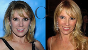 Ramona Singer Plastic Surgery Before and After Photos
