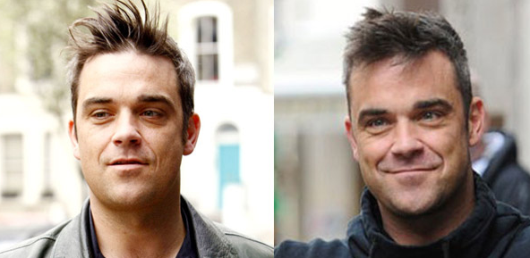 Robbie Williams plastic surgery before and after photos