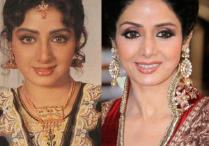 Sridevi Plastic Surgery Before and After Photos