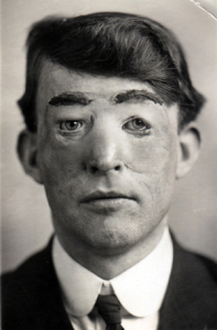 Walter Yeo Plastic Surgery : First Patient