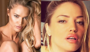 Charlie Riina Plastic Surgery Before and After Photos