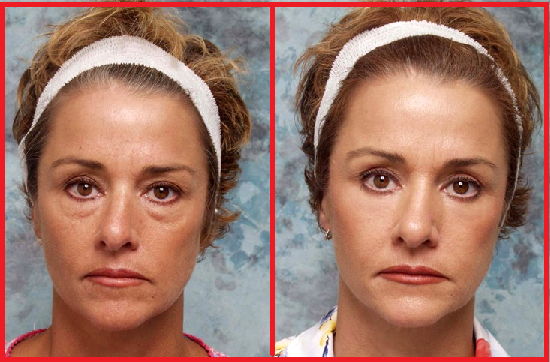 Eyelid Surgery Popularity Before and After Photos