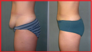 Plastic Surgery Tummy Tuck Before and After Photos