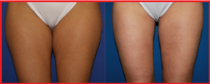 Thigh Lift – Factors To Figure Out The Cost