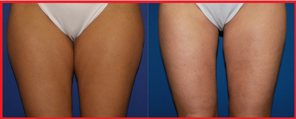 Thigh lift before and after photos