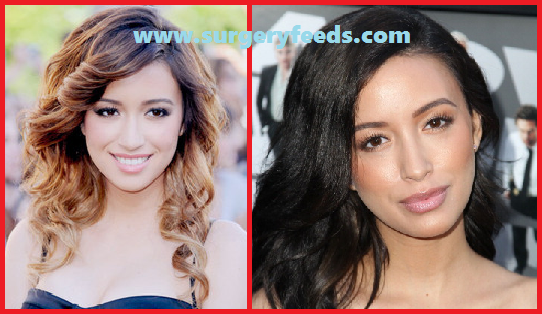Christian Serratos Lip Job before and after photos