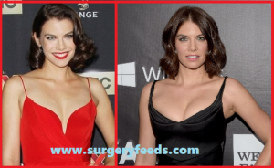 Lauran Cohan Breast Implants before and after photos