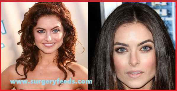Brook Lyons plastic surgery before and after photos