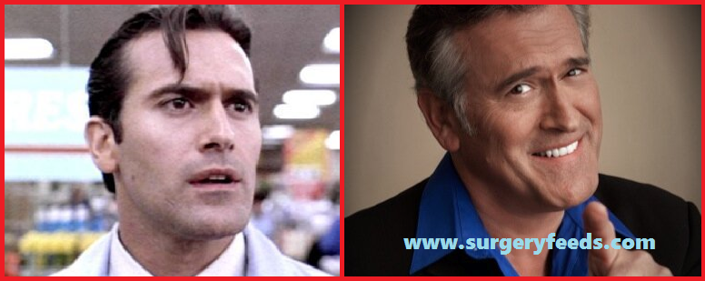 Bruce Campbell Plastic Surgery Before and After Photos