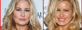 Jennifer Coolidge plastic surgery before and after photos