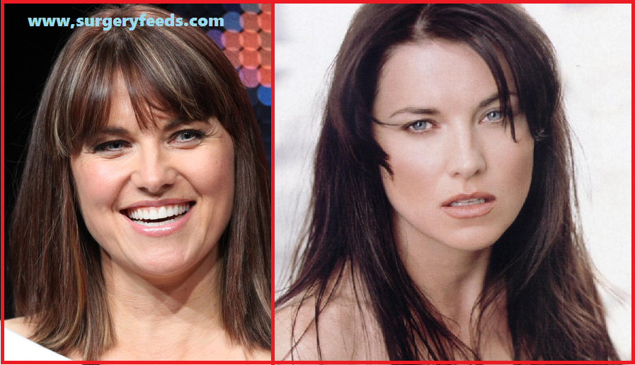 Lucy Lawless Plastic Surgery before and after photos