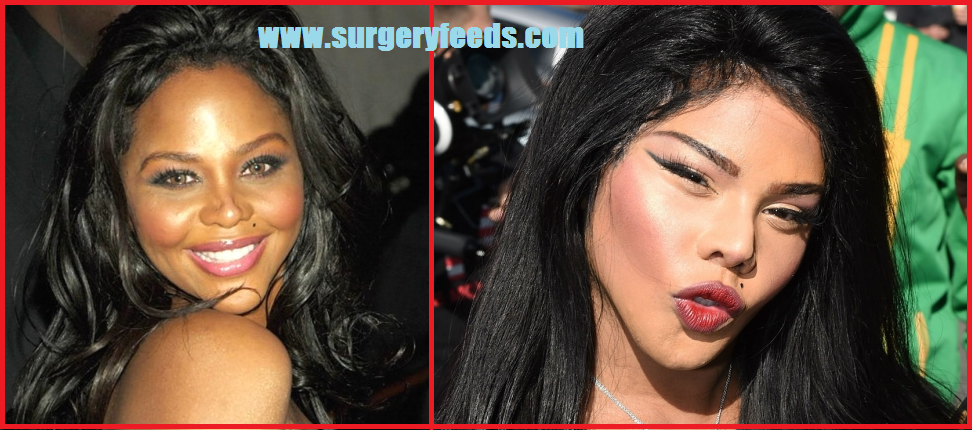 Lil Kim Plastic Surgery Disaster
