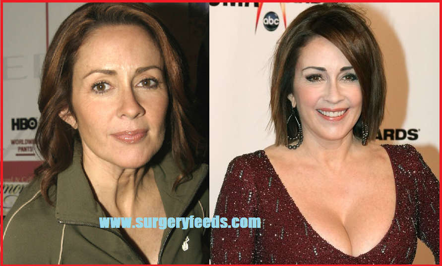 Patrica Heaton plastic surgery before and after photos