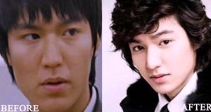 Lee Min ho Plastic Surgery Lee Min ho before and after photo