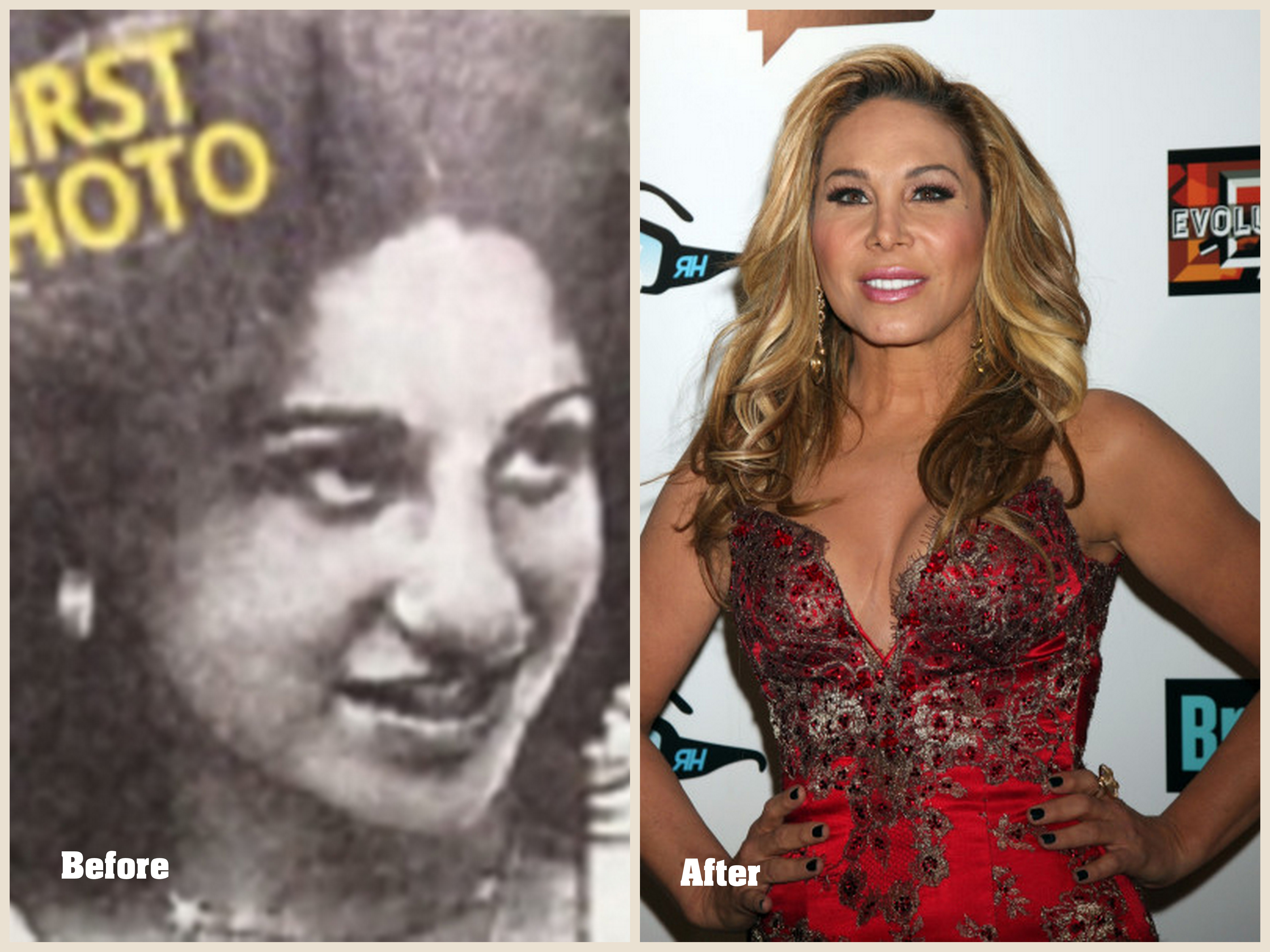 Adrienne Maloof Plastic Surgery Before And After Photo