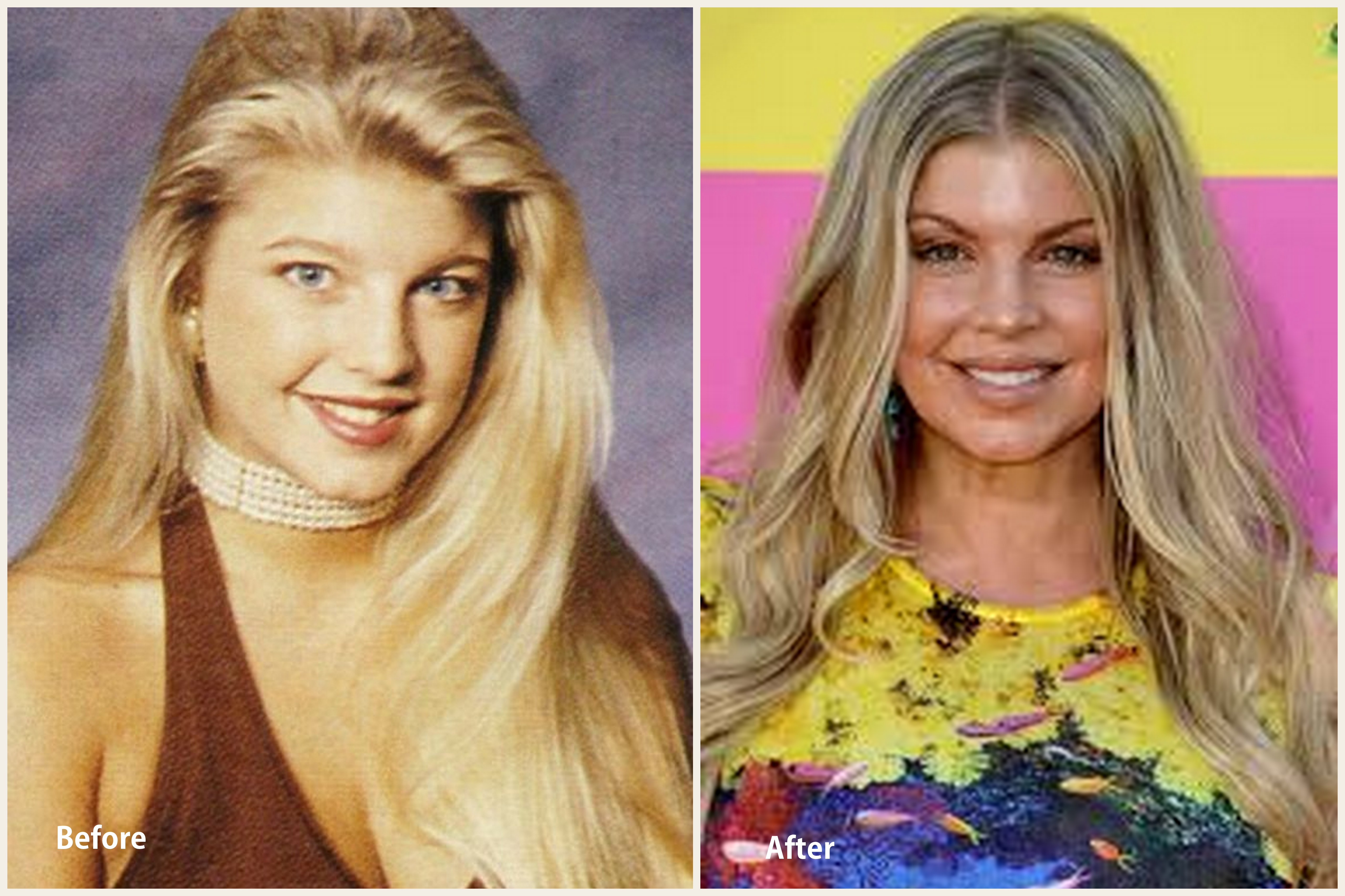Fergie Plastic Surgery Fergie Before and After photo
