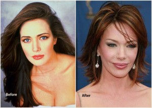 Hunter Tylo Plastic Surgery Hunter Tylo before and after photo