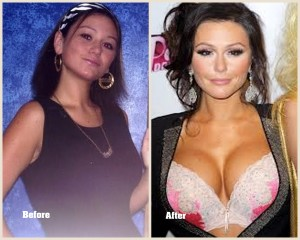 Jwoww Plastic surgery Jwoww before and after photo