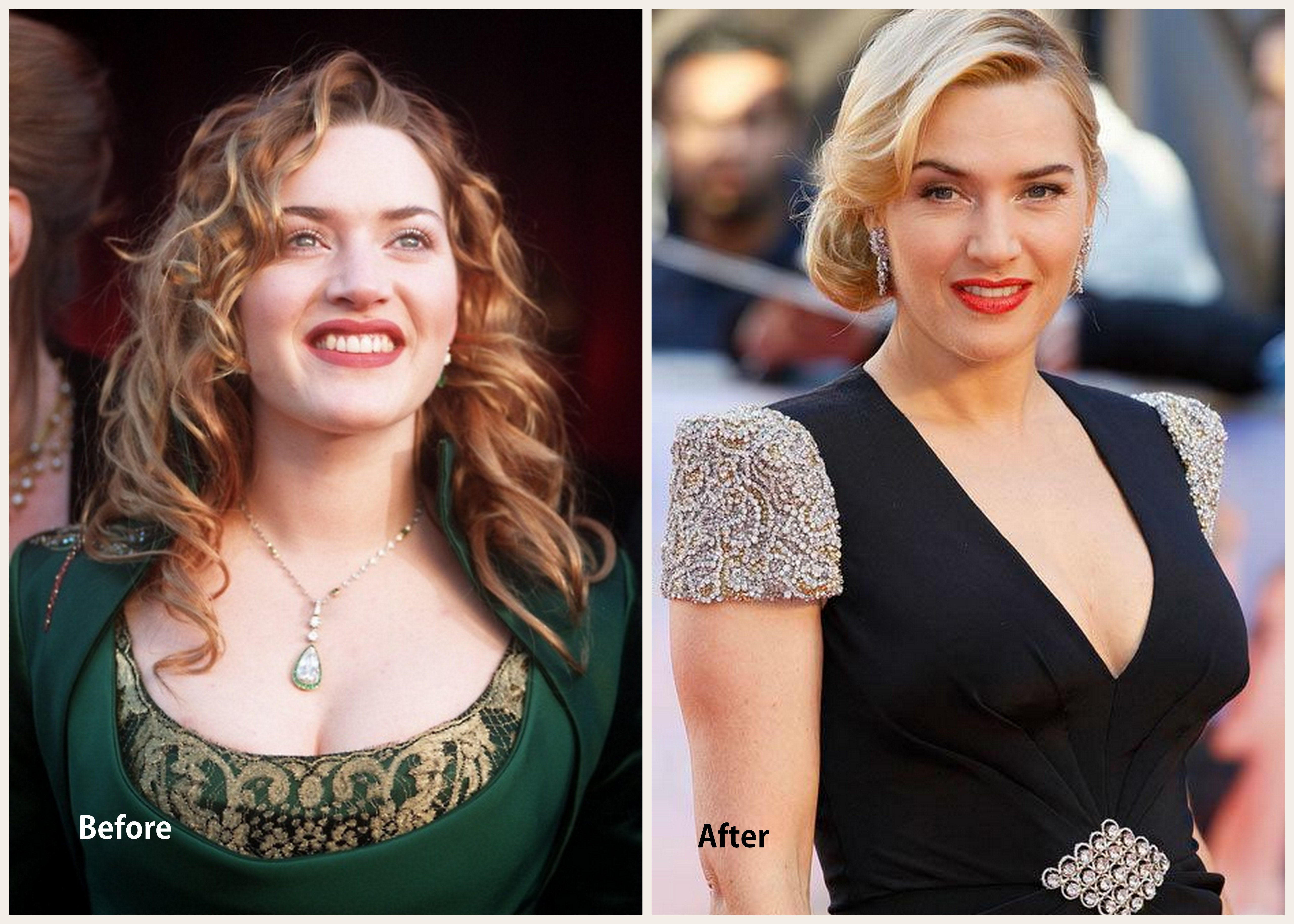 Kate Winslet Plastic Surgery Kate Winslet Before and after photo