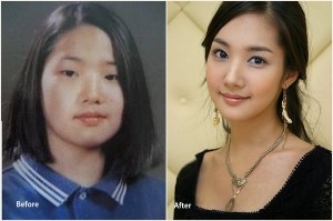 Park Min Young Plastic Surgery Park Min Young Before and After photo