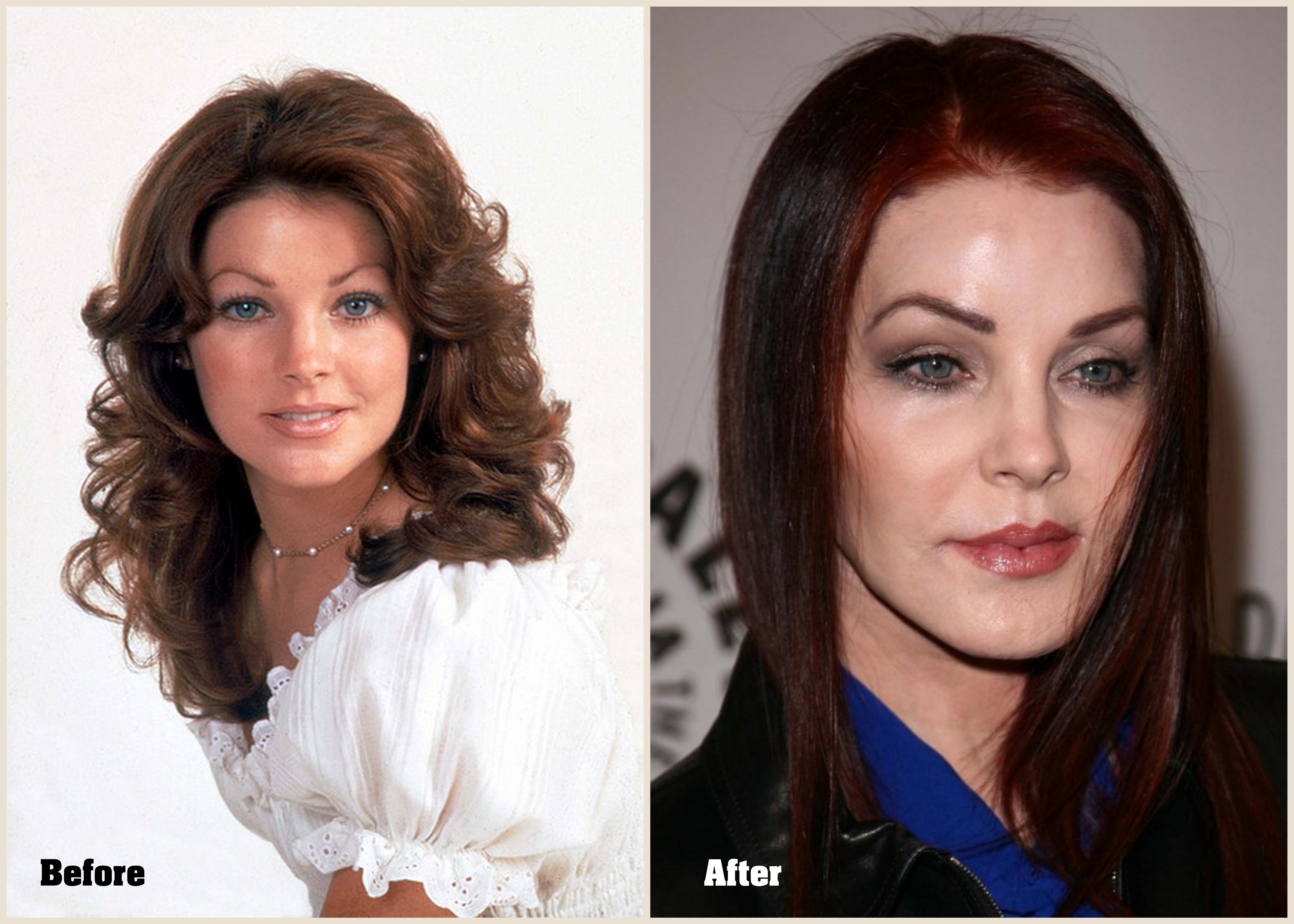 Priscilla Presley Plastic Surgery Before And After Photos