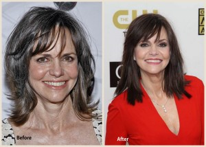 Sally Field Plastic Surgery Sally Field Before and after photo