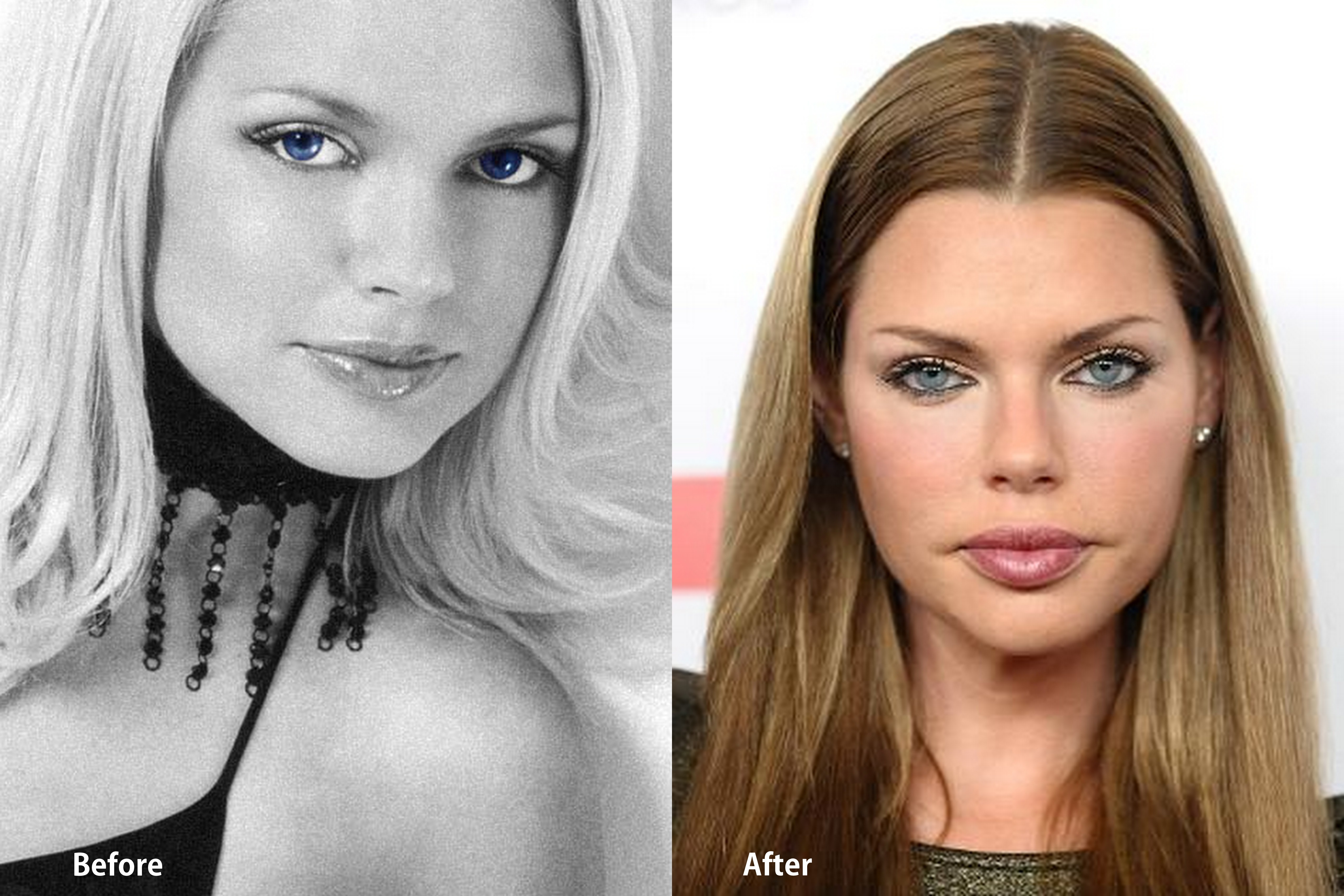 Sophie Monk Plastic Surgery Sophie Monk Before and After photo
