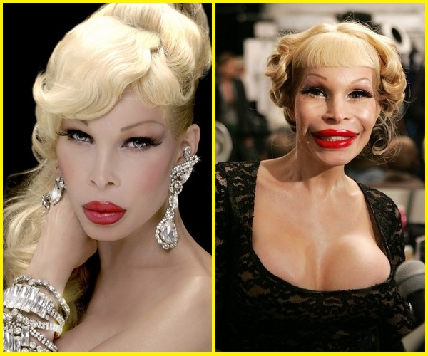 Model Amanda Lepore Plastic Surgery Before And After Photo