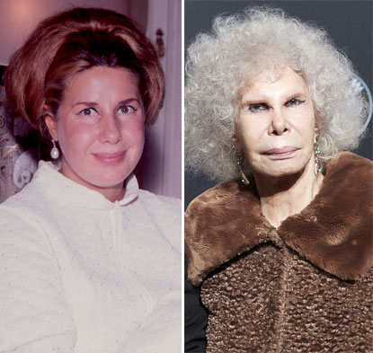 Duchess Of Alba Plastic Surgery Before And After Photo