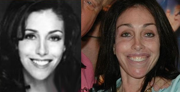 Host Heidi Fliess Plastic Surgery Before And After New