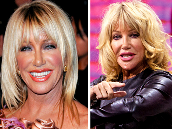 Suzanne Somers Plastic Surgery Before And After Photo