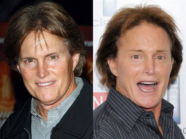 Bruce Jenner Plastic Surgery Before And After Photo Shows