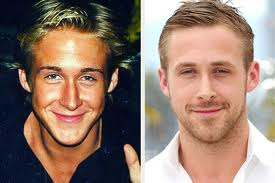 ryan gosling before and after photo