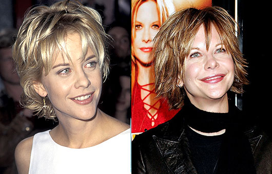 Meg Ryan Plastic Surgery Before And After Showing Facelift