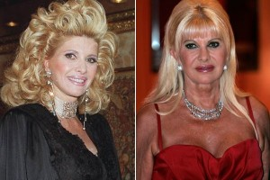 Ivana trump before and after photo