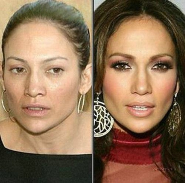 Jennifer Lopez Plastic Surgery Before And After Photos 2014