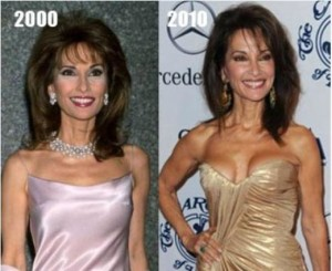 Susan Lucci before and after photo