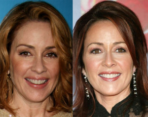 patricia heaton before and after photo