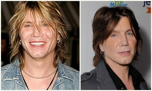 John Rzeznik before and after photo
