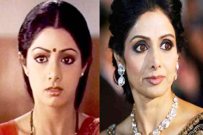 Rhinoplasty Before And After Sridevi Plastic Surger...