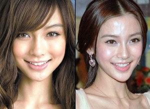 AngelaBaby plastic surgery before after