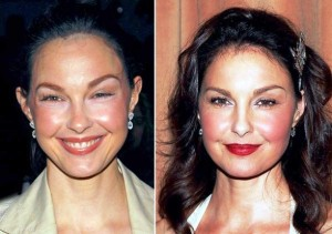 Ashley-Judd-Plastic-Surgery-Before-And-After