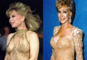 Barbara Eden Plastic Surgery Before and After Photos