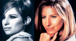 Barbara Streisand plastic surgery before after