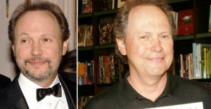 Billy Crystal-plastic-surgery