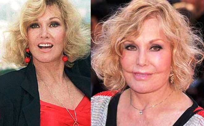 Kim Novak Plastic Surgery Before And After Photos 2014