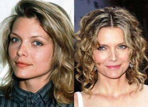Michelle Pfeiffer Nose Job Before and After Photos