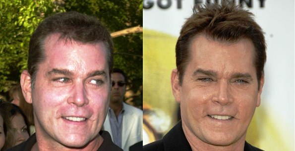 Ray Liotta Plastic Surgery Before And After Photos 2014-1563
